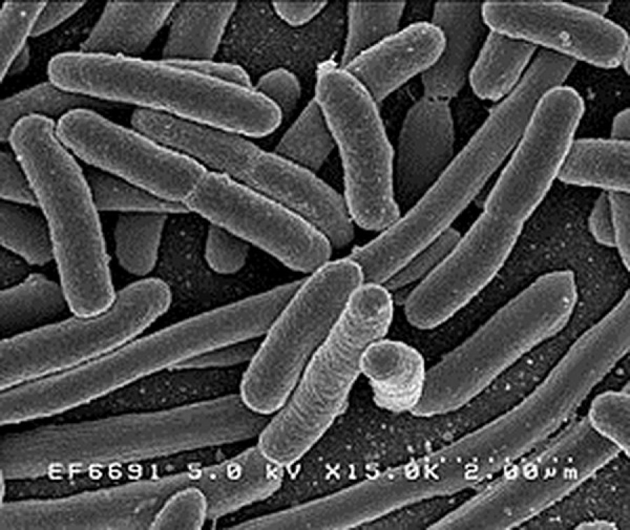 Muore per infezione intestinale una bambina di soli 15 mesi