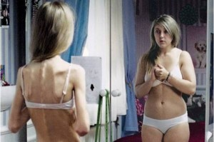 Anoressia, fame d'affetto